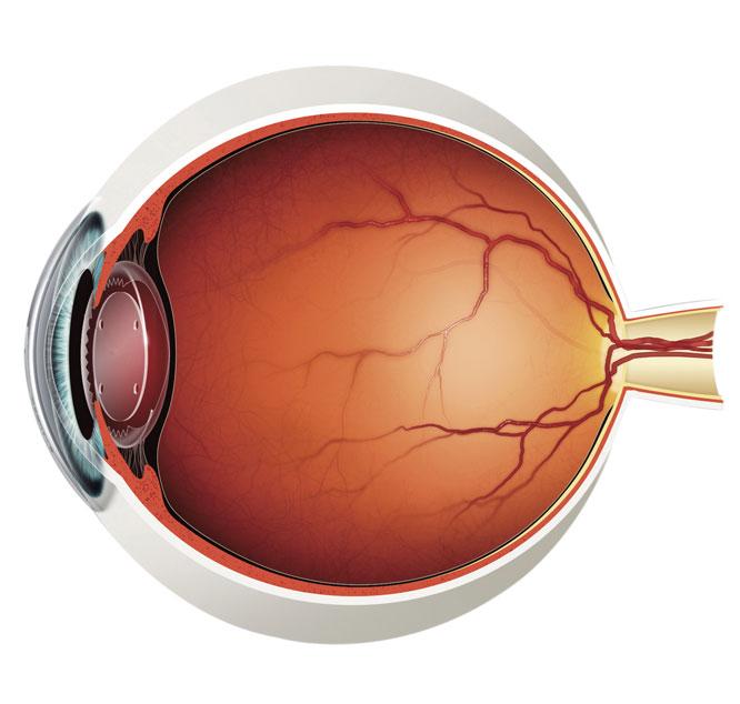 Die Ersatzlinse / Refraktiver Linsentausch